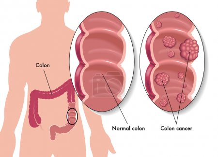 Illustration for Colon cancer - Royalty Free Image