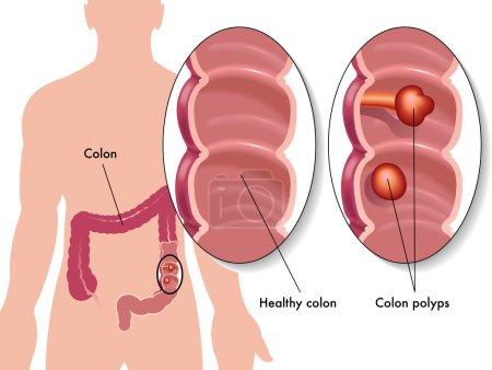 Colon polyp