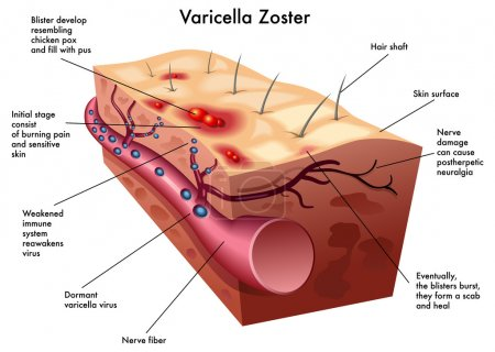 Varicella zoster...