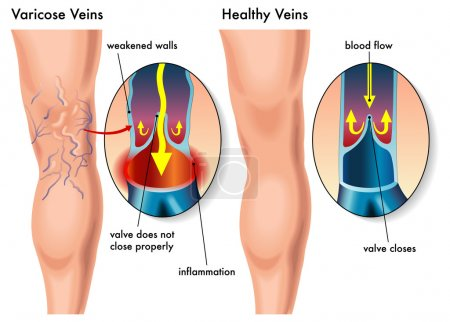Illustration for Varicose Veins - Royalty Free Image