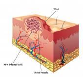 Wart anatomy
