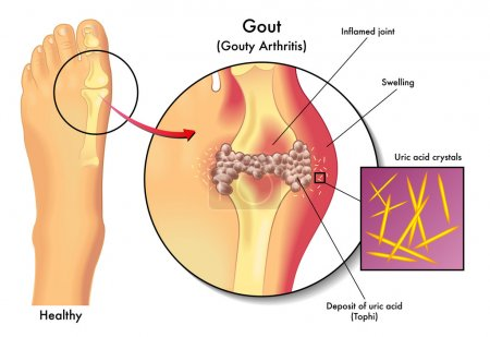 Detailed human Gout