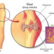 Vector illustration of detailed human Gout on whit...