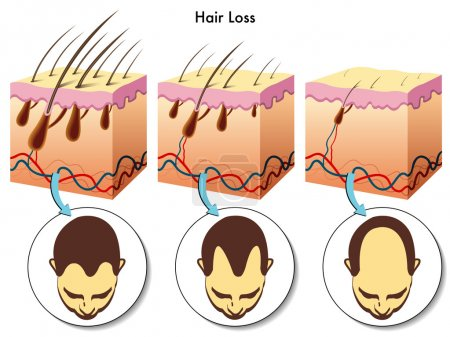 Hair loss process