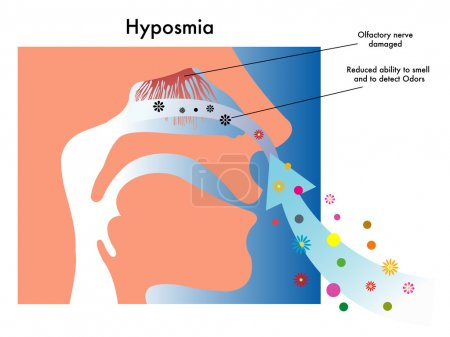Medical illustration of symptoms of hyposmia