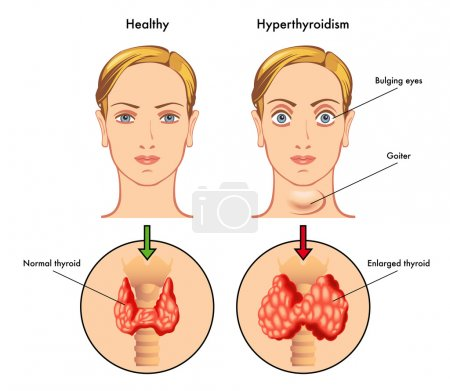 Anatomy of Thyroid gland, Epiglottis, Trachea.