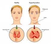 Anatomy of Thyroid gland, Epiglottis, Trachea.