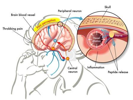 colorful Migraine scheme
