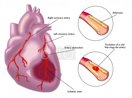 Myocardial infarction scheme