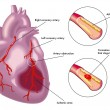 Vector illustration of colorful Myocardial infarct...