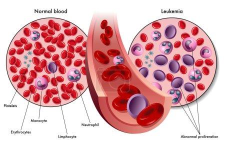 colorful Leukemia scheme