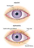 colorful Blepharitis scheme