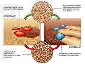 Osteoblasten und Osteoklasten-Regelung