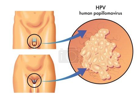 colorful Papillomavirus scheme