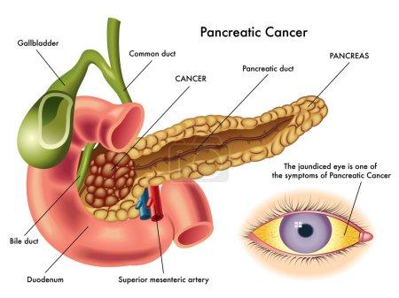 Pancreatic Cancer scheme