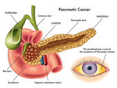 Pancreatic Cancer scheme