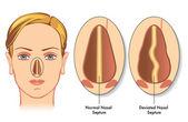 Deviated nasal septum