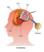 Human craniotomy scheme