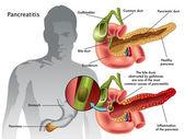 Human pancreatitis scheme