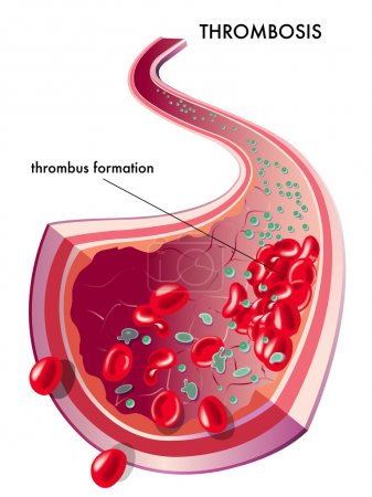 Human thrombosis scheme
