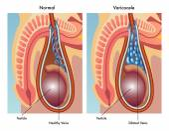 human varicocele anatomy