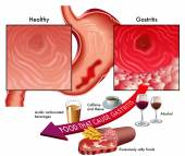 symptoms of gastritis and foods to avoid