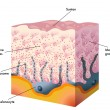 Medical illustration of the formation process of t...