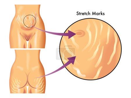 Medical illustration of symptoms of stretch marks