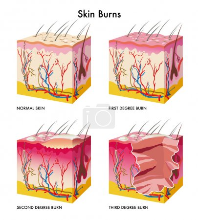Medical illustration of the formation of skin burns