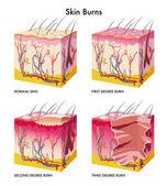 Medical illustration of the formation of skin burns