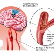 Medical illustration of the effects of the TIA (tr...