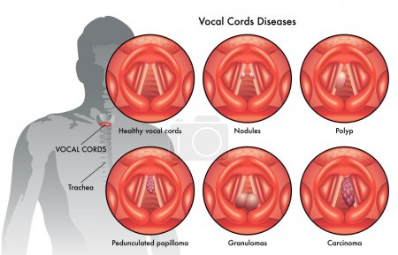 vocal cord diseases