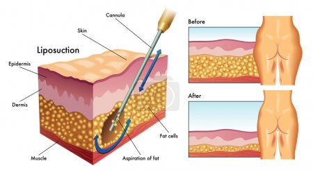 mechanism of human liposuction