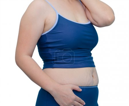 Fat Asian woman in swim suit on white background