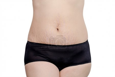woman showing stretchmarks on her belly