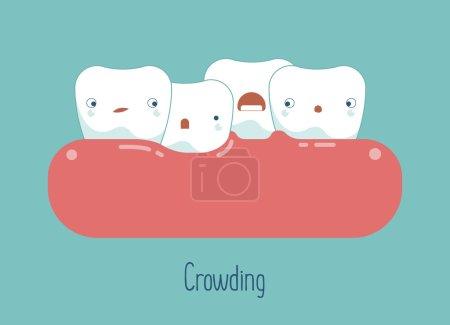 Ilustración de Apiñamiento de los dientes, dental concepto - Imagen libre de derechos