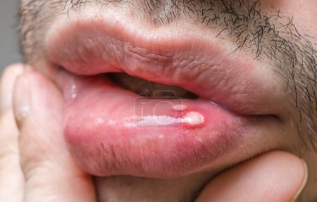 Painful aphtha ulcer on man's mouth.