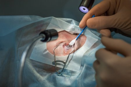 Flap raising during lasik operation. (one of 7 shots)