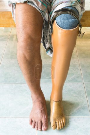 Photo for Prosthetic leg - Royalty Free Image