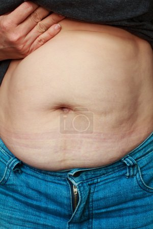 Extremely obese womans belly.