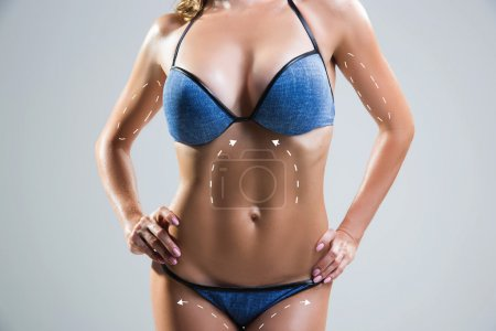 Body correction with the help of plastic surgery . Woman belly marked.