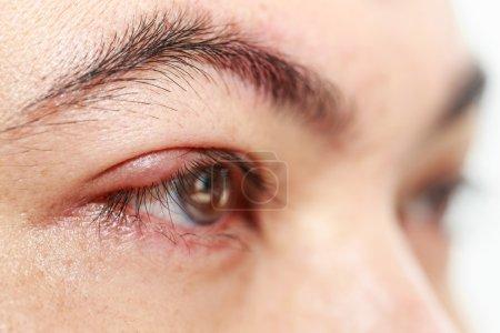 Right upper eyelid abscess