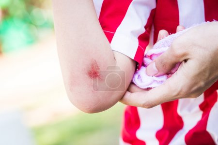 Young Child With bleeding arm wound near elbow