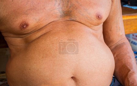 Closeup fat asian man has a big paunch....