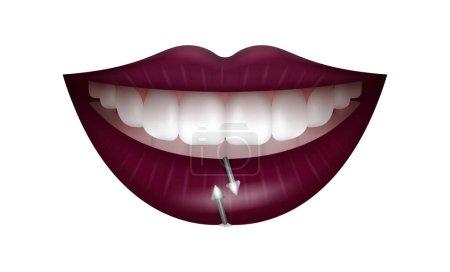 Illustration pour Lèvres féminines avec rouge à lèvres noir et piercings. lèvres violettes réalistes isolées sur fond blanc. - image libre de droit