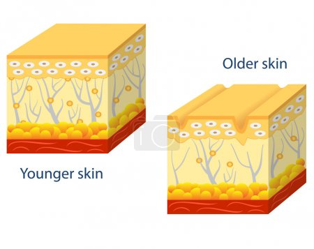 Illustration for Illustration of younger skin and aging skin showing the decrease in collagen and broken elastin in older skin. - Royalty Free Image