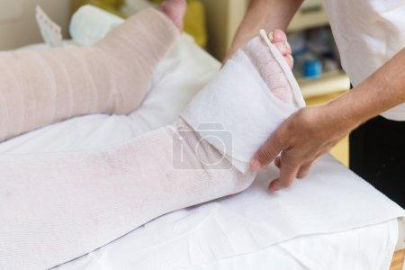 Photo pour Femme jambes le pansement pour un patient avec effet de gonflement - image libre de droit