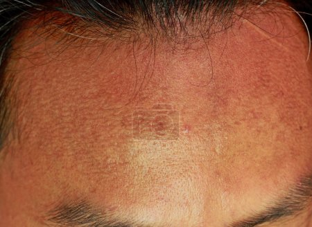 Photo pour Front de l'acné, texture de la peau - image libre de droit