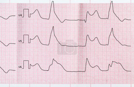 Tape ECG with macrofocal myocardial infarction and ventricular bigemia