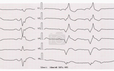 Tape ECG with acute period of myocardial infarction